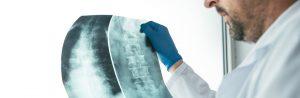 Fisioterapeuta analisando raio x